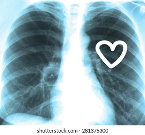 Human x-ray with heart, close-up