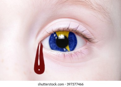 human's eye with national flag of bosnia and herzegovina with bloody tears. concept