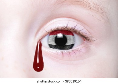 human's eye with national flag of yemen with bloody tears. concept