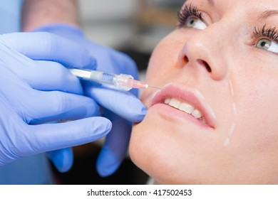 Hyaluronic acid beauty treatment performed on upper lip