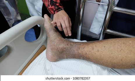 Hyperpigmentation and Oedema of lower limb with Chronic Venous Insufficiency.