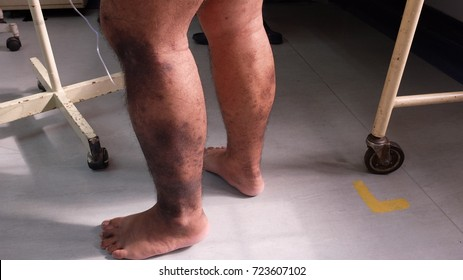 Hyperpigmented lower limbs due to Chronic Venous Insufficiency