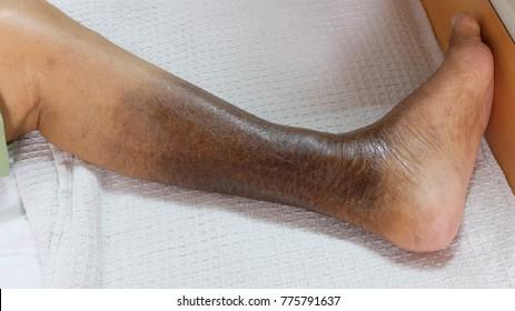 Leg Ulcer Images, Stock Photos & Vectors | Shutterstock