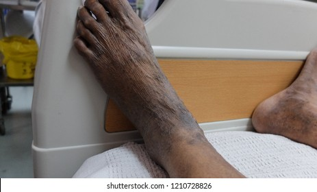 Hyperpigmented Lower Limbs with Varicosities suggested Chronic Venous Insufficiency.