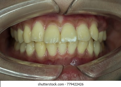 hypo-mineralization lesion on tip of front tooth,Dental fluorosis
