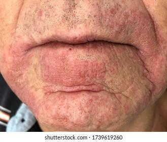 Durch das Kontaktekzem aus der schmutzigen Maske wird die unbestimmte juckende, erythematöse Läsion an der Wange und am Mund verursacht.