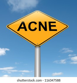 Illustration depicting a roadsign with an acne concept. Sky background.