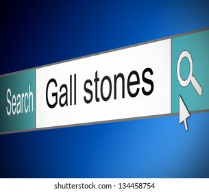 Illustration depicting a screen shot of an internet search bar containing a Gall stones concept.