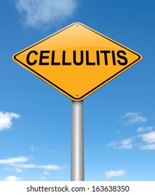 Illustration depicting a sign with a Cellulitis concept.