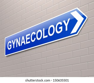 Illustration depicting a sign directing to Gynaecology.