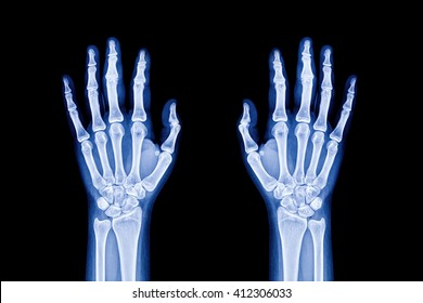 Illustration of hands x-ray
