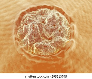 An illustration of a Plantar Wart, or Verruca Plantaris up-close on the skin. Verruca Plantaris is a wart caused by the human papillomavirus (HPV) occurring on the sole or toes of the foot.