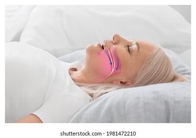 Illustration montrant la voie aérienne pendant l'apnée de sommeil obstructive