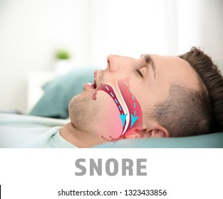 Illustration showing airway during snore