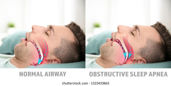 Illustrations showing difference between normal breathing and obstructive sleep apnea