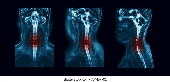 MR (magnetic resonance) myelography (or myelogram) of the cervical spine, showing bilateral cervical 7 (C7) nerve root compression (coronal, oblique and sagittal planes)
