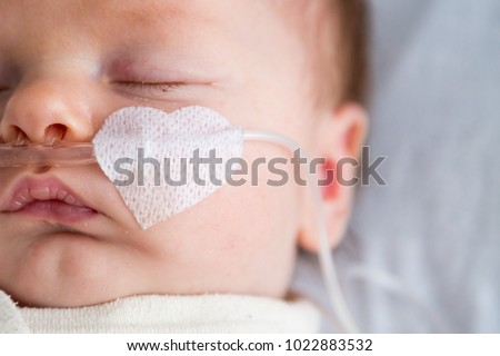 Newborn baby weakened with bronchitis is getting oxygen via nasal prongs to assure oxygen saturation #1022883532