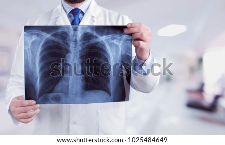 Male doctor examining x-ray #1025484649