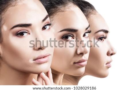 Collage of beautiful woman with vitiligo disease. #1028029186
