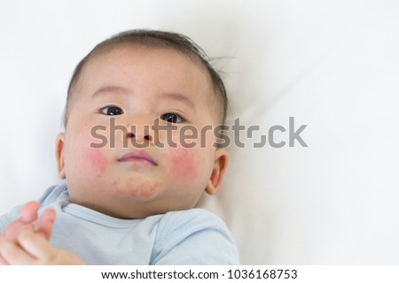 Skin rashes in babies concept #1036168753