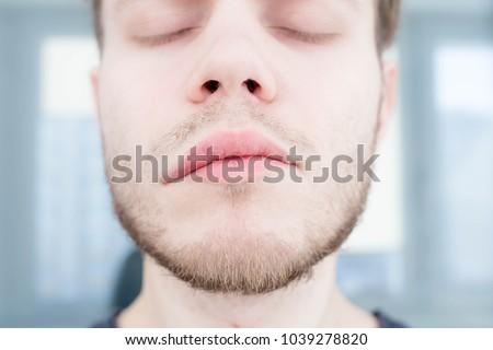 symptom of stroke cerebral. asymmetry of the face. angioedema  #1039278820