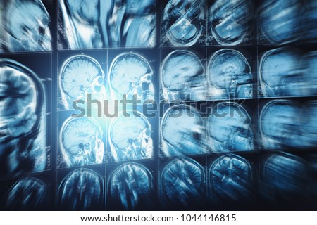 Abstract image with motion blur effect of MRI or magnetic resonance image of head or scull and brain scan, Neurology background