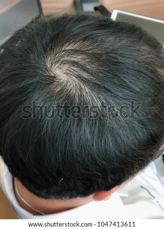 The problem of the man is bald. #1047413611