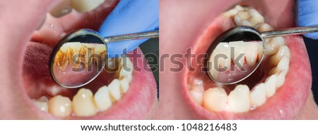 Plaque of the patient, stone. Dentistry treatment of dental plaque, professional oral hygiene. The concept of harm to smoking and cleaning teeth #1048216483