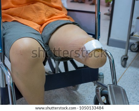 Amputated leg woman cause by diabetic sitting on wheelchair. #1050133484