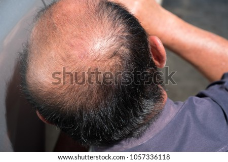 closedup of Behind the head, bald man #1057336118