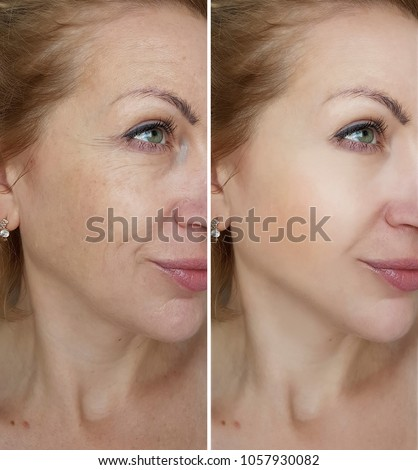 face woman wrinkles   before and after treatments  Royalty-Free Stock Photo #1057930082