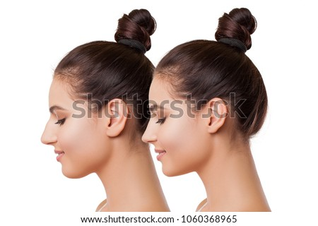 Plastic surgery. Beautiful Female Face Comparison Before and After complex Plastic Surgery - Liposuction of the Chin, Nose and Ear Plastic, Plastic Surgery Buccal fat Removal. Before and after         #1060368965