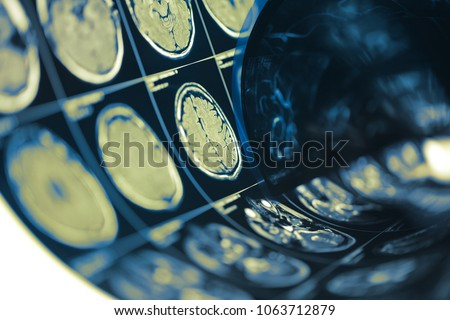 Human brain scan testing film folded in a roll, medical background with space for your design.