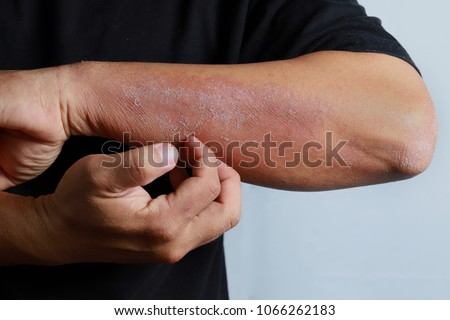 Close up dermatitis on skin, ill allergic rash dermatitis eczema skin of patient , atopic dermatitis symptom skin detail texture , Fungus of skin ,The concept dermatology, treatment fungal and fungal #1066262183