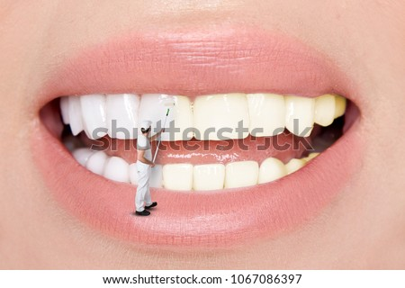 Beautiful teeth. Teeth whitening by the dentist. #1067086397