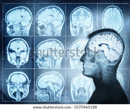 Conceptual image of a man from side profile showing brain  activity. Magnetic resonance image (MRI) of the brain
