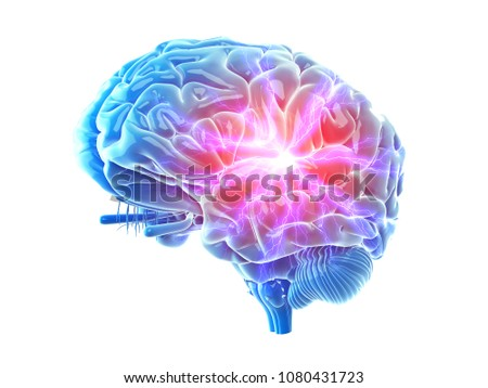 3d rendered, medically accurate illustration of a painful brain