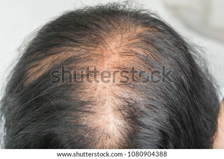 Thin  hair and scalp  and broken hair Royalty-Free Stock Photo #1080904388