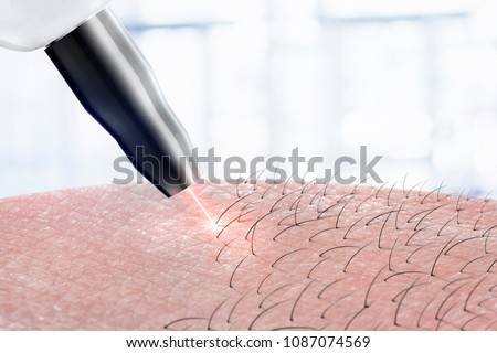 cosmetology procedure laser hair removal on body parts. Laser epilation. Royalty-Free Stock Photo #1087074569
