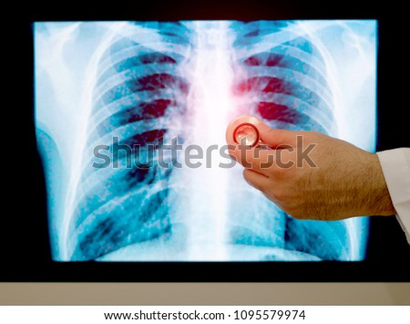 x-ray red heart of human #1095579974