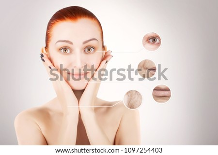 skin lifting, red haired woman portrait #1097254403