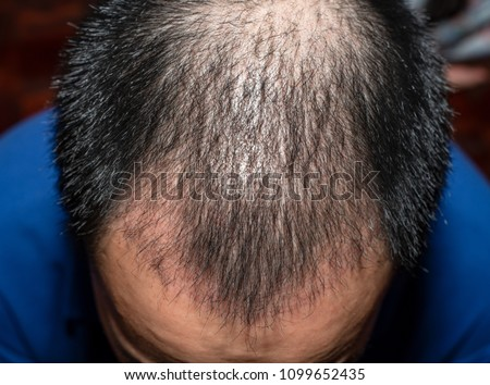 Top view of a man's head with hair transplant surgery. Bald head of hair loss treatment. #1099652435