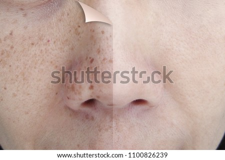 Before and After Retouch Freckles on Young Asian Woman Face Royalty-Free Stock Photo #1100826239