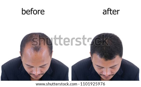 before and after bald head of a man . #1101925976
