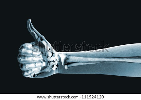 x-ray hand on black background Royalty-Free Stock Photo #111524120