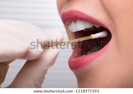 Dentist's Hand Taking Saliva Test From Woman's Mouth With Cotton Swab Royalty-Free Stock Photo #1118975393