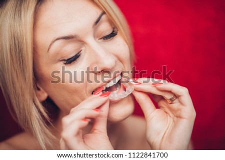 Invisible braces aligner, woman smiling #1122841700