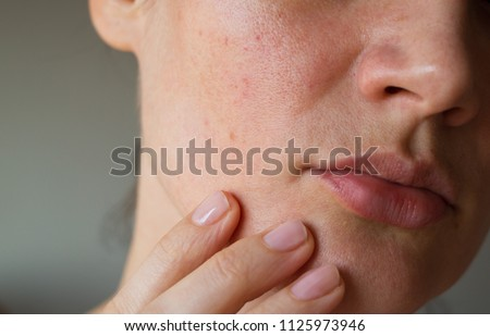pores on the skin of the face. Cleansing the face skin Royalty-Free Stock Photo #1125973946