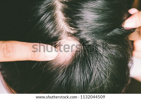 Man with alopecia areata on head, Spot Baldness, Hair fall problem #1132044509