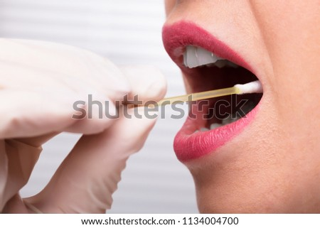 Dentist's Hand Taking Saliva Test From Woman's Mouth With Cotton Swab Royalty-Free Stock Photo #1134004700